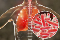 Legionnaires Disease - Implications for the Industrial Hygienist
